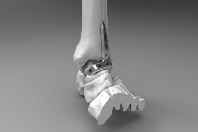 Ankle plate 3 Medical