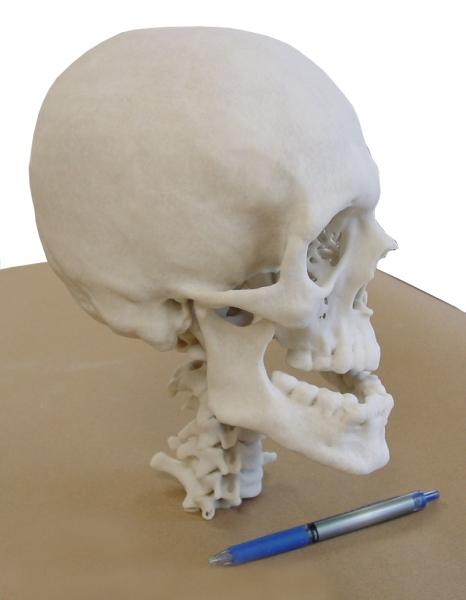 MBH EMS Skull 3 Medical