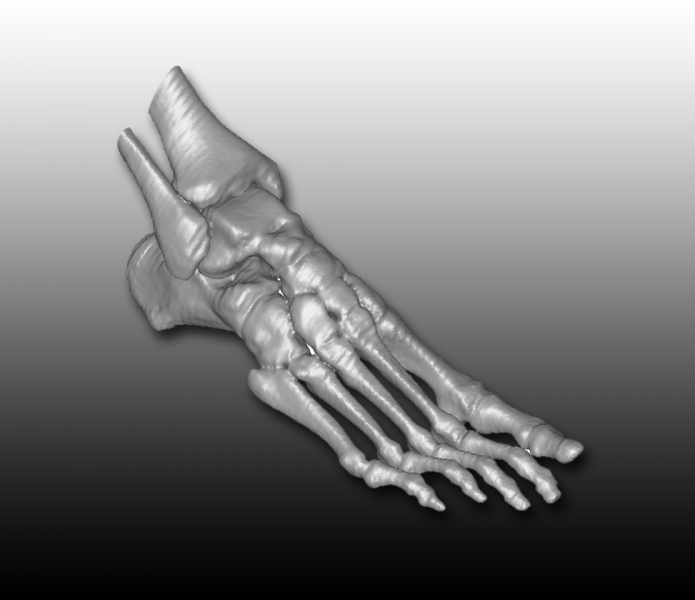 foot Scan 1 copy Medical